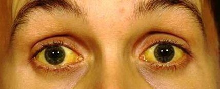 Bola mata kuning penderita hepatitis B