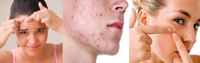 O que provoca a acne e quais são os tratamentos