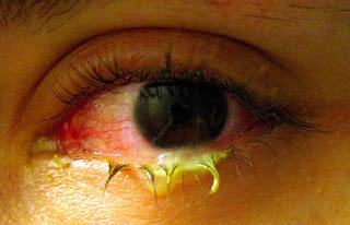 Petua elak jangkitan sakit mata