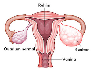 Meningkatkan kanker ovarium