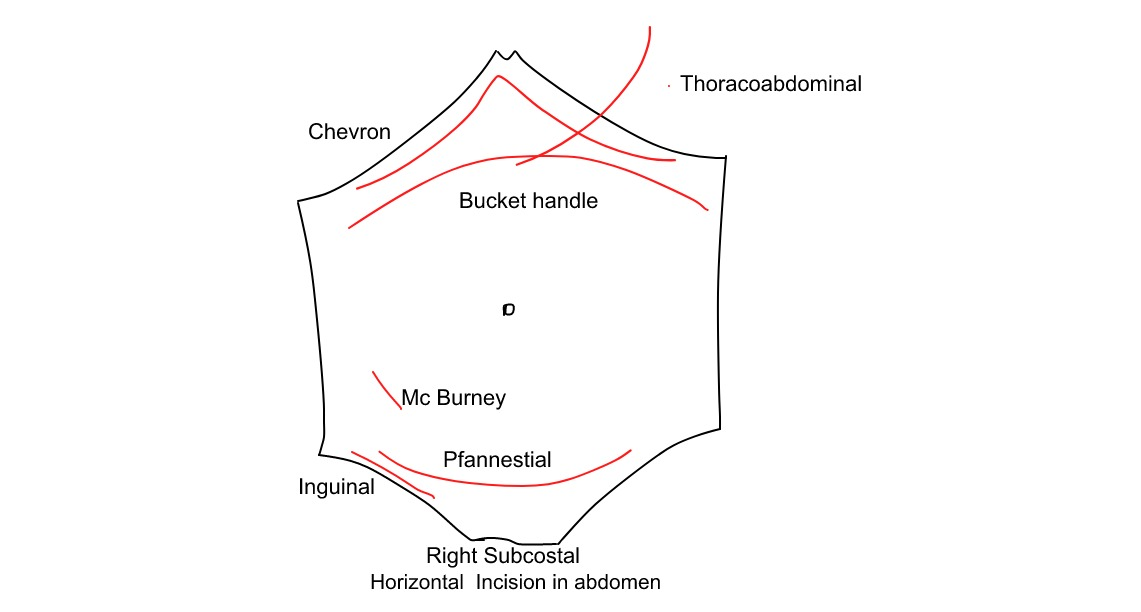 horizontal incision in abdomen