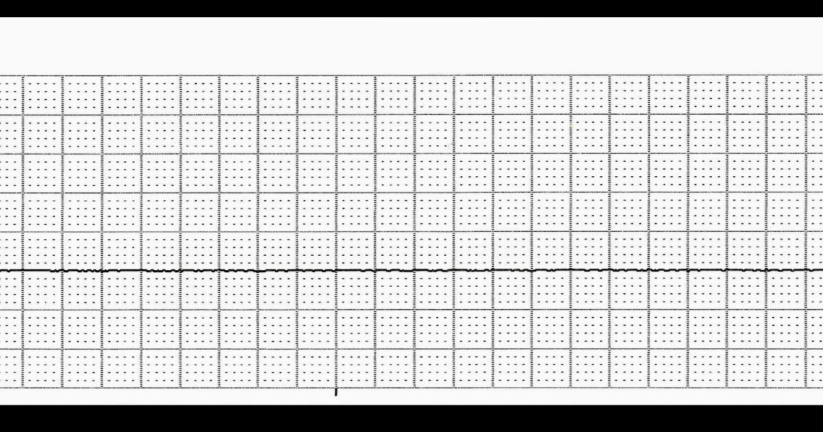 Float Nurse: Basic EKG Rhythm Test 18