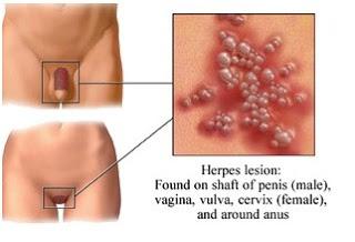 Hidup Mesti Diteruskan Ujian Jangkitan Herpes