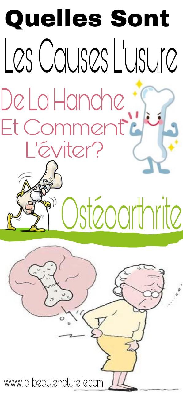 Quelles sont les causes l'usure de la hanche et comment l'éviter? ostéoarthrite