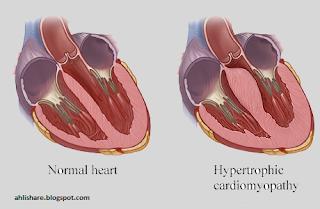 4 Penyebab Kematian Mendadak - Hypertrophic Cardiomyopathy