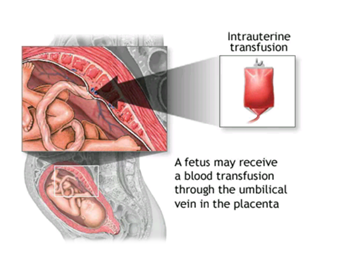 diagram of a neonate receiving Intrauterine Transfusion.