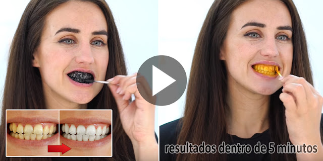 5 Minute DIY - See How To Get White Teeth By Using Natural Ingredients!