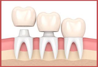 اسعار تلبيس الاسنان الزيركون