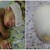 Hanya Dengan Menggunakan Telur Rebus Efektif Turunkan Demam Anak