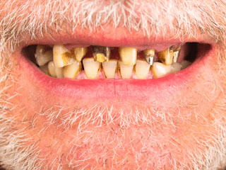 Damage or loss of a tooth is one of the classic signs of scurvy pictures