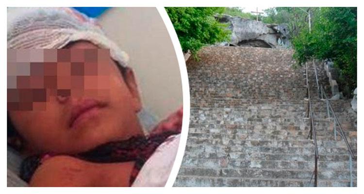 Criança cai da escadaria da Gruta de Solidão e sofre traumatismo craniano - Imagem ilustrativa – Foto: Reprodução