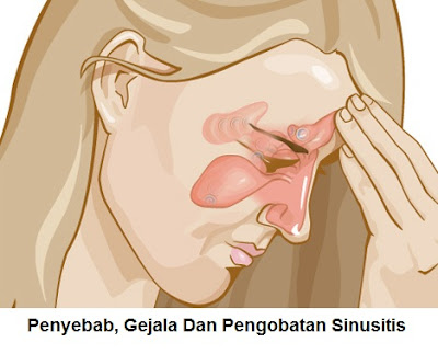 Penyebab, Tanda Gejala Dan Pengobatan Penyakit Sinusitis