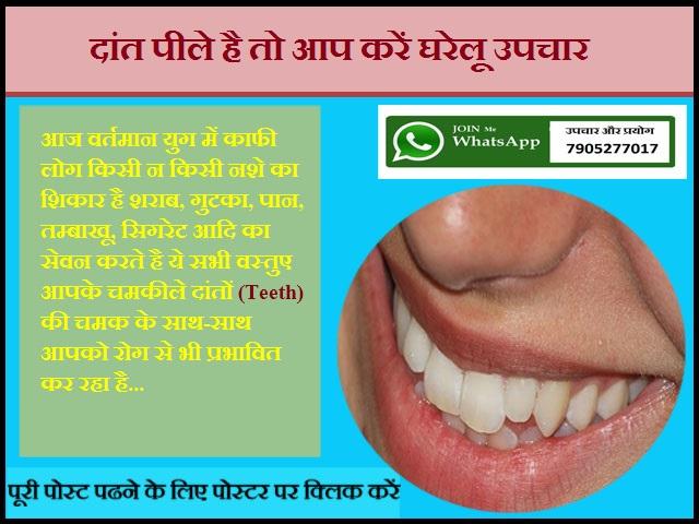 दांत पीले है तो आप करें घरेलू उपचार