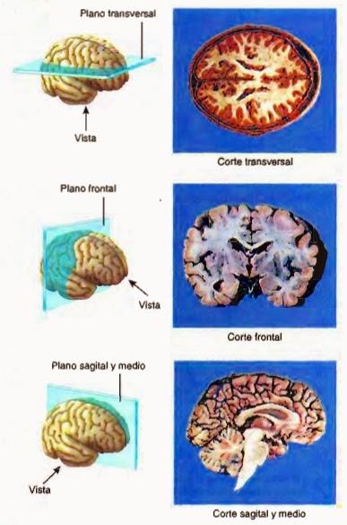 Ilustración de los planos anatómicos en el cerebro humano