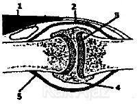 Tendinitis patella: peradangan tendon patella (urat tempurung kepala)