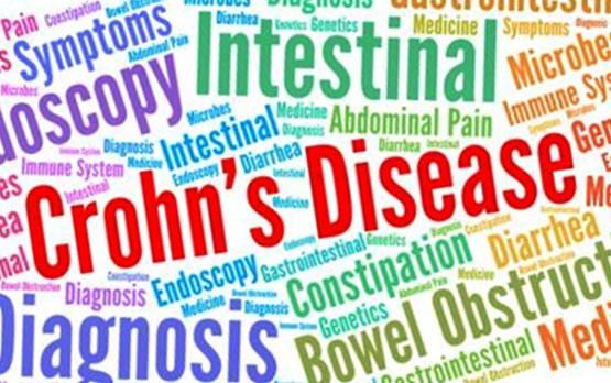 Artrita asociata entezitei