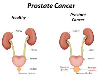 http://www.urologistindia.com/prostate_cancer/