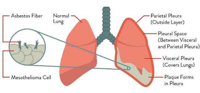 Mesothelioma A Cancer of The Lung Lining