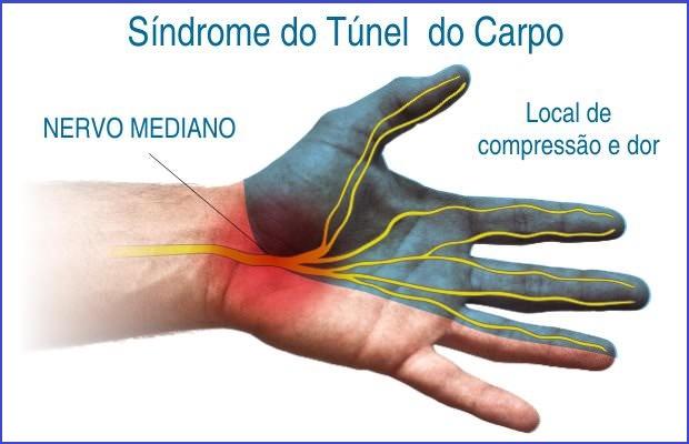 """Sente dores, formigamento e dormência nas mãos? Cuidado, pode ser a """"Síndrome do Túnel do Carpo""""  (Vico Massagista - São José SC)"""