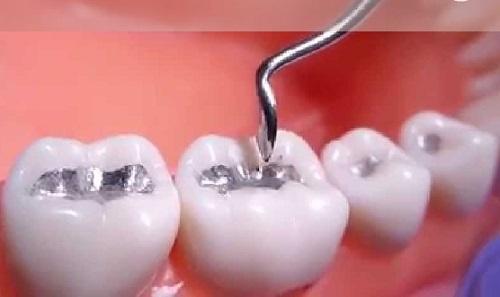 Trám răng bằng Amalgam là thế nào, có đảm bảo an toàn không?