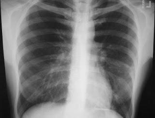 x ray finding of pneumonia