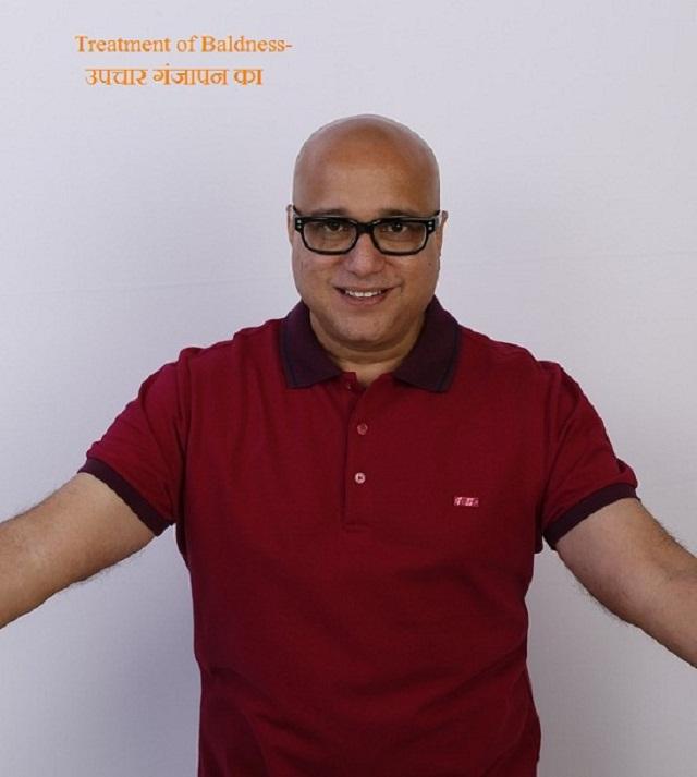 गंजापन(Baldness)का उपचार