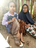 Penderita Kaki Gajah Desa Kanca Butuh Bantuan