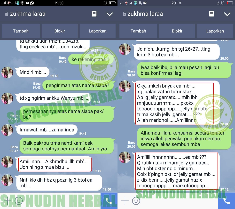Image Result For Cara Mengobati Udun