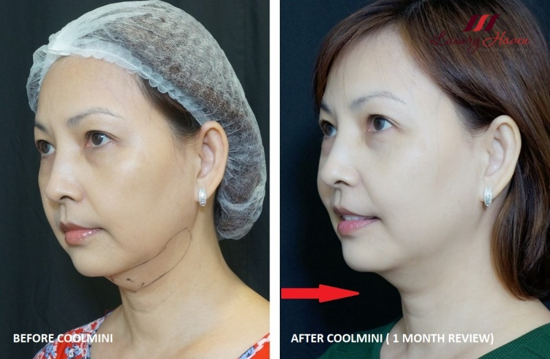 coolsculpting zeltiq coolmini double chin before after results