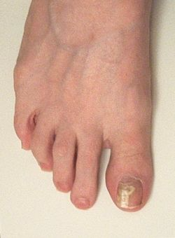 The Efficacy of Vinegar and Hydrogen Peroxide in Treating Toenail Fungus: A Case Study