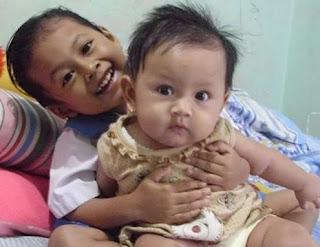 Mengatasi, Menyembuhkan, Mengobati serta Menghilangkan Bintik Merah Pada Bayi
