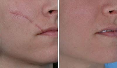 Préparer cette crème pour éliminer les cicatrices en un mois