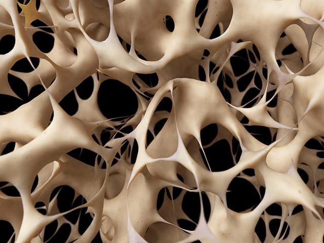 Cara Ampuh Atasi Osteoporosis