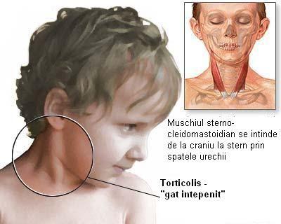tratamentul periartritei de șold