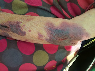 further bruises to arms