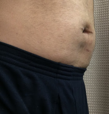 Three weeks after hernia repair at Shouldice  - right angle