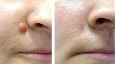 como acabar com as verrugas no nariz