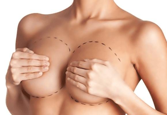 implantes-silicones-seios