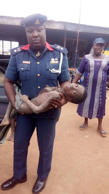 Photos: Malnourished 9 year old boy who had been chained for weeks at a Celestial church rescued by NSCDC officials