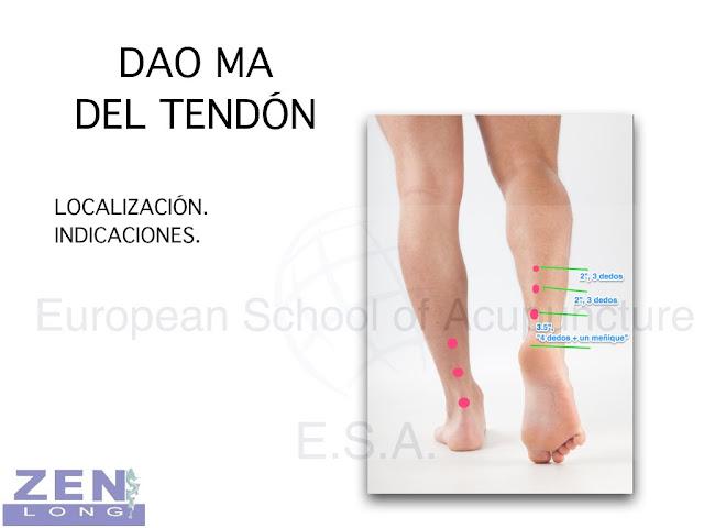 La acupuntura Tung para la tortícolis y hernias.