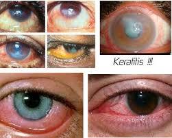 Mengenal Penyakit Mata Keratitis, Penyebab dan Gejalanya