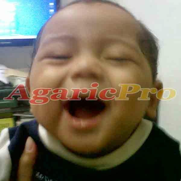 testimoni pasien obat herbal penyakit hernia pada anak