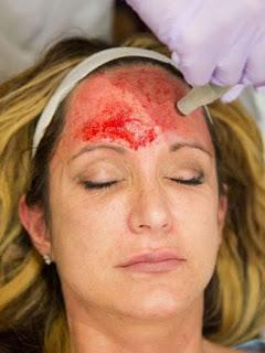 CANTIK DAN MULUS DENGAN VAMPIRE FACIAL Perawatan Kulit Wajah dengan Facial Darah