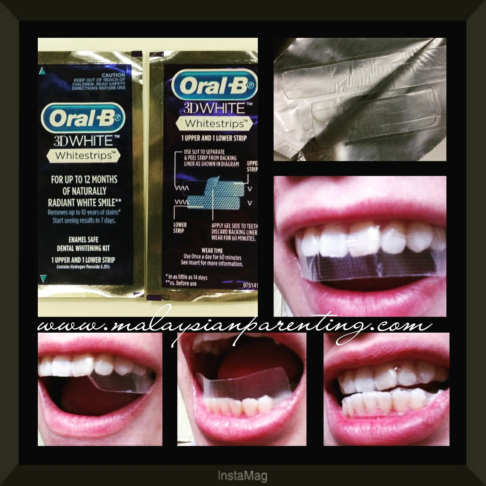 strips Oral b whitening