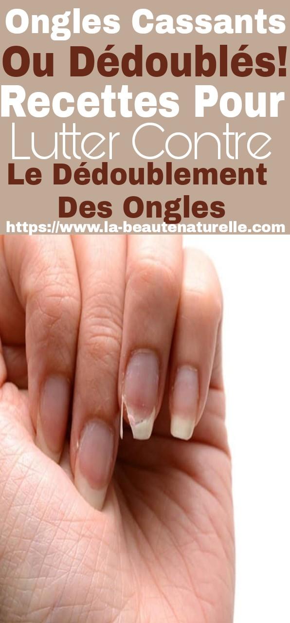 Ongles cassants ou dédoublés! Recettes pour lutter contre le dédoublement des ongles