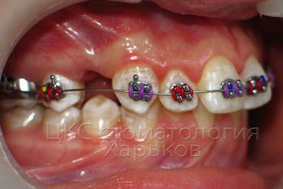 Через 7 дней после удаления зуба приклеили брекеты