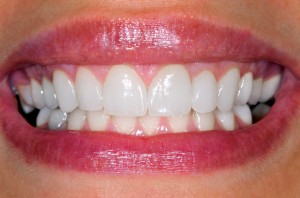 http://ultimatecosmeticdentalcenter.com/teeth-reconstruction.html