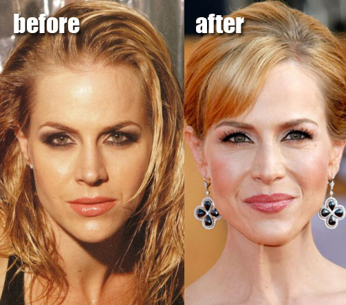 julie benz plastic surgery before and after botox hair extensions and. Cars Review. Best American Auto & Cars Review