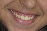"""<Imgsrc =""""Yas-15 años.jpg"""" width = """"220"""" height """"144"""" border = """"0"""" alt = """"Erupción de los dientes después de corte sobre la encía >"""