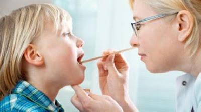 Thuốc chữa viêm amidan hốc mủ cho trẻ